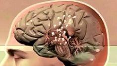 Braindop2-250-140